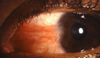 Pterygium_small