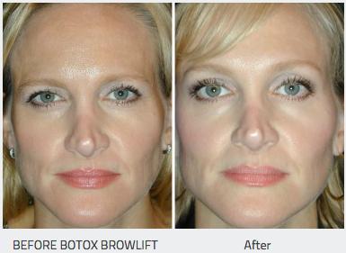 Botox Dysport Tampa Eye Clinic