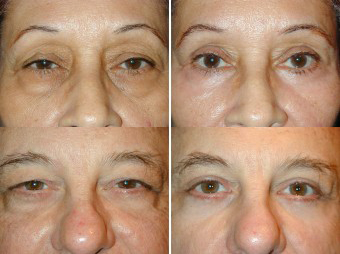Laser Eyelid Surgery | Tampa Eye Clinic